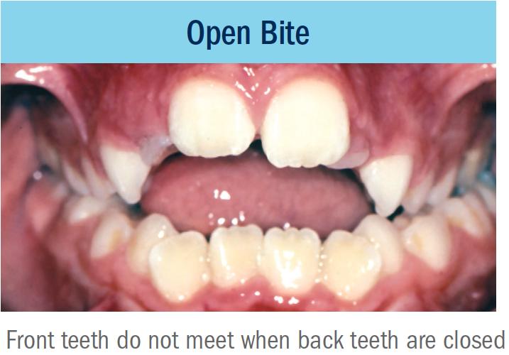 open bite bellevue orthodontist eastside braces.png