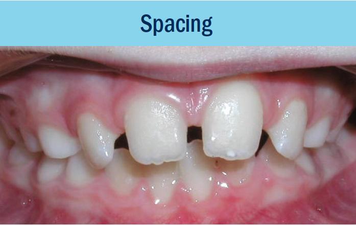 spacing bellevue orthodontist eastside braces.png