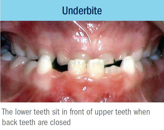 underbite bellevue orthodontist eastside braces.png